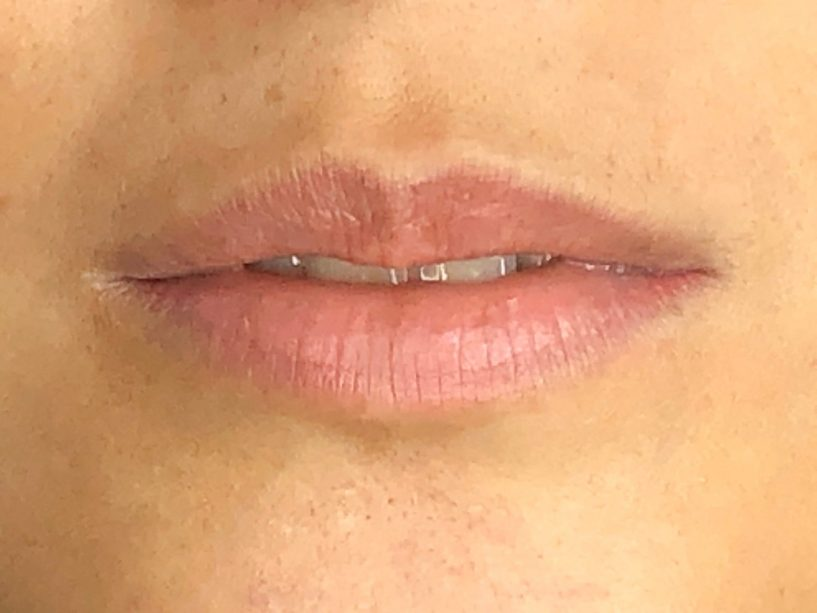 mlfc-lip-tattoo-before